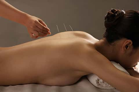 exemple d'acupuncture